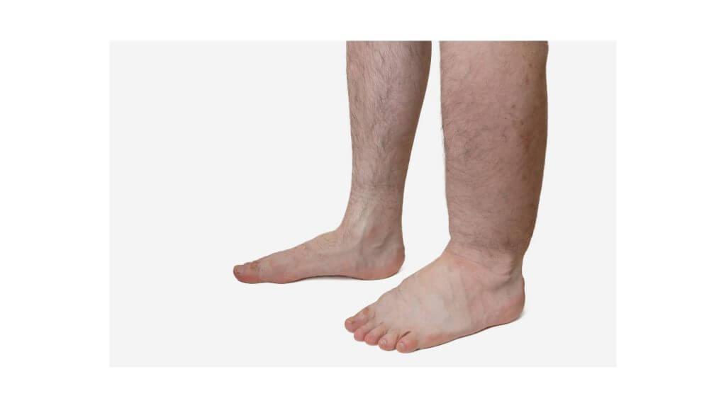 足の浮腫の写真