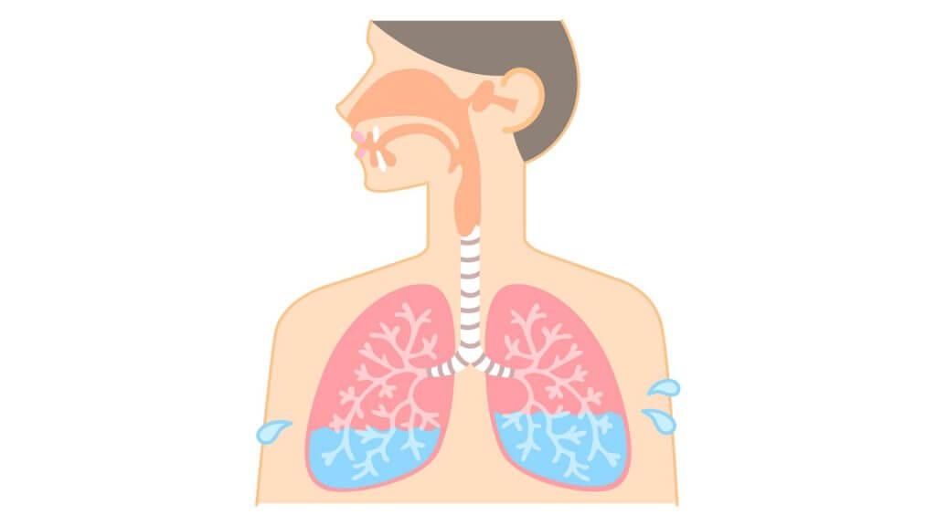 胸水のイメージ図
